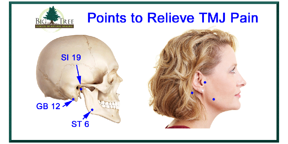 Tmj Relief Using Acupoints And Acupressure