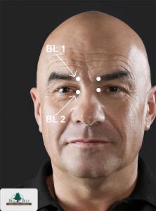 Bladder 1, 2 Acupressure Points